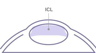 ICL挿入