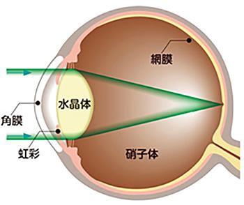 眼内レンズ